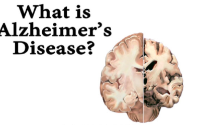 Episode 36 – Understanding Alzheimer's and How to Keep Your Brain Healthy